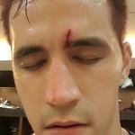 Marc Pingris nasty cut from Maierhofer
